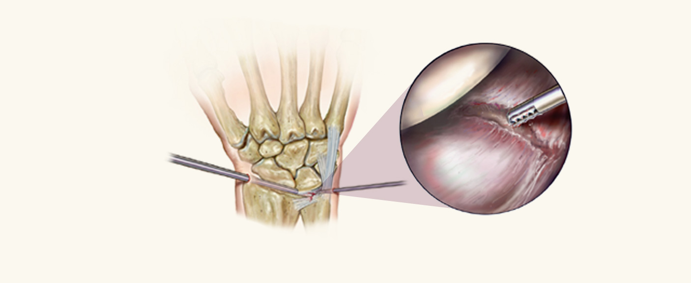 Arthroscopic Surgery Diagram