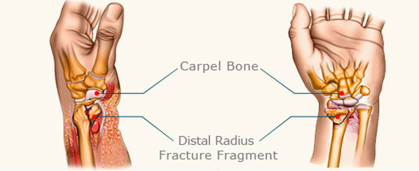 Distal radial fractures diagram 1