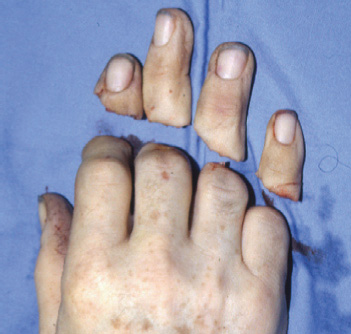 Successful replantation of all four fingers