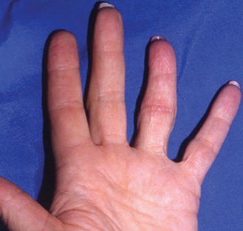 Successful replantation of complete ring avulsion