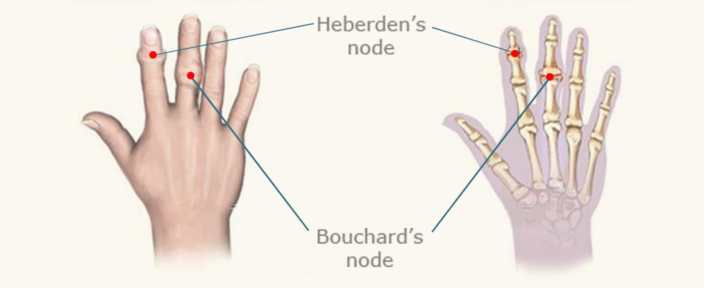 heberden's nodes hand diagram
