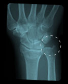 intra-articula-fracture