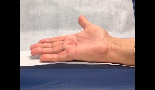 Hand post severe Dupuytern's Contracture treatment.